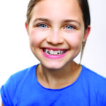 Does My 7-Year-Old Really Need Braces?